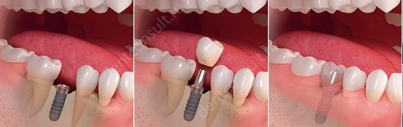 Фото: класичний метод імплантації
