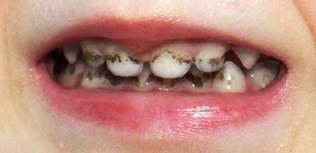 Карієс на молочних зубах