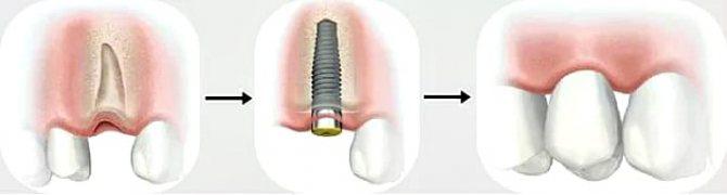 одноетапна імплантація
