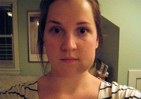 Сильні набряки на обличчі - один з побічних ефектів операції на щелепу