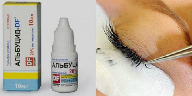 Як засіб для зняття нарощених вій ви можете використовувати краплі для очей альбуцид.